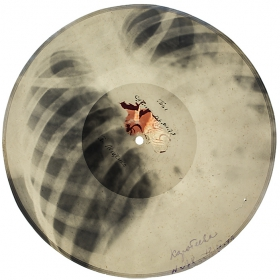 X-Ray records image gallery